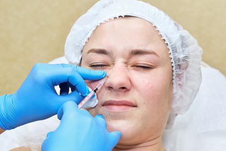 arrugas: Anti-edad de la terapia de inyecci�n. reducci�n de arrugas m�micas Foto de archivo