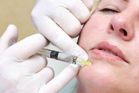 arrugas: Anti-age injection therapy. Mimic wrinkles reduction