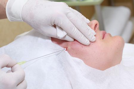 Procedura di chirurgia lifting del viso Archivio Fotografico