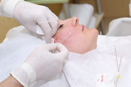 Procedure of face lifting surgery Stock fotó