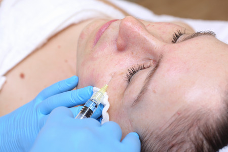 Anti-age injection therapy. Mimic wrinkles reduction