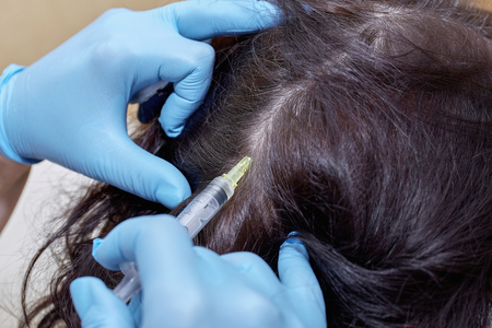 pelade: Anti hair loss injection in clinic