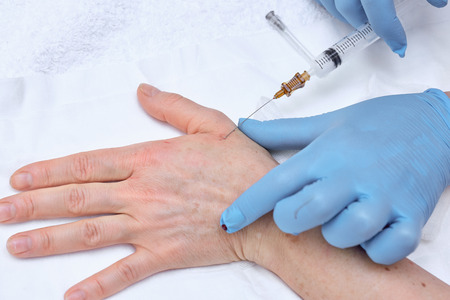 rejuvenation: Anti-age injection therapy. Hand rejuvenation