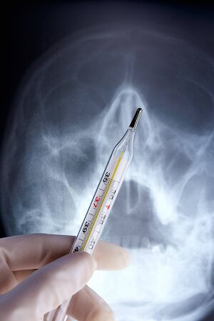 Mercurial thermometer and x-ray of head in hand with medical sterile rubber glove. Stock fotó