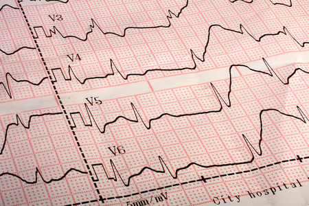 printout: Close up of an electrocardiogram printout