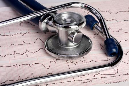 Cerca de una copia impresa del electrocardiograma y un estetoscopio