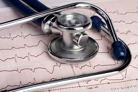 heart healthy: Close up of an electrocardiogram printout and stethoscope