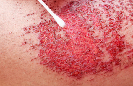 scab: wound on the human skin. closeup