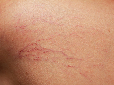 veins on the skin. close Stockfoto
