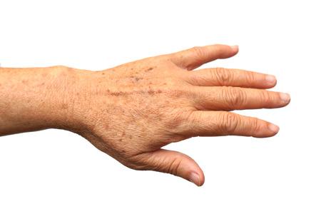 Signe du vieillissement - taches de rousseur sur la main
