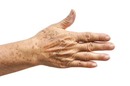 80 year old: old female hand full of freckles
