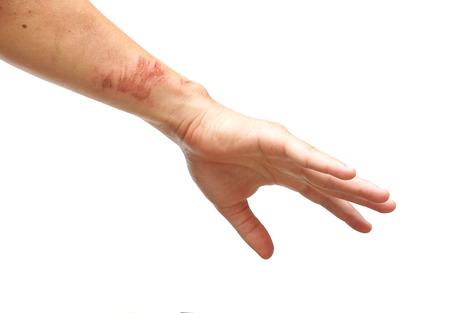 herida: brazo con una lesi�n superficial de la herida