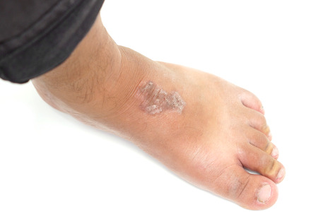 skin disease: skin disease caused by mold called Epidermophyton floccosum  Athletes foot Stock Photo