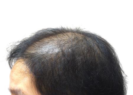 Asian female head with hair loss Stock Photo - 62127889