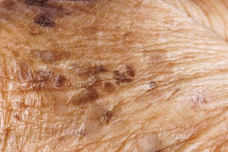 freckle: Freckle on skin closeup