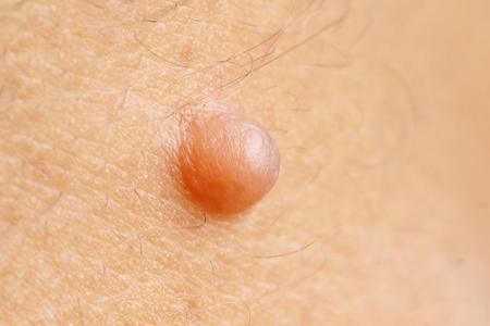 mole: Mole on skin Stock Photo