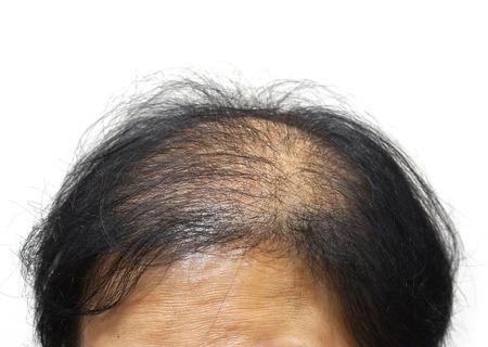 calvicie: cabeza de mujer asiática con la caída del cabello Foto de archivo