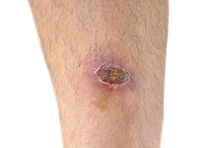 infectious: Infectious wound on leg Stock Photo