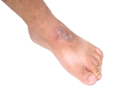 infectious: Infectious wound on foot Stock Photo