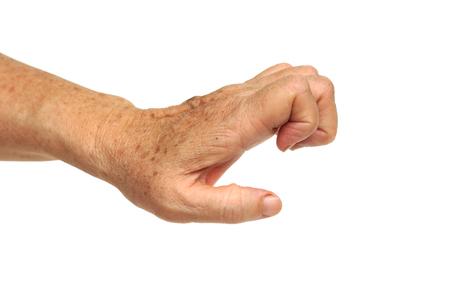 gatillo: la mano de personas mayores que sufren hembra de dedo en gatillo, digital flexor de la tenosinovitis, tenosinovitis estenosante Foto de archivo
