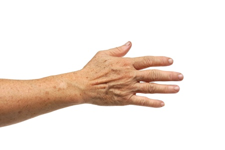 aging: Sign of aging - freckles on hand