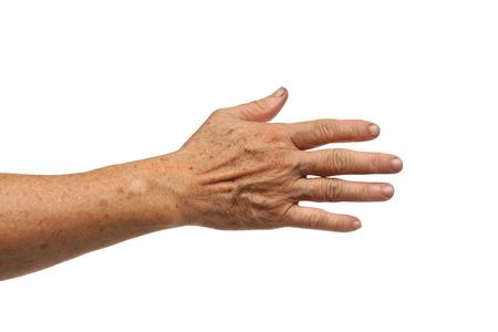 old female hand full of freckles