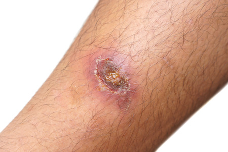 abscess: Infectious wound on leg Stock Photo