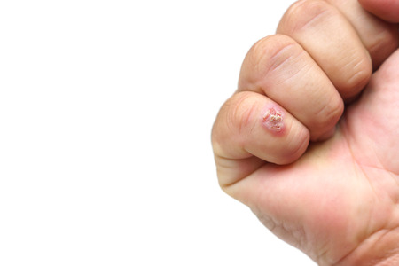 infectious: Infectious wound on finger isolated