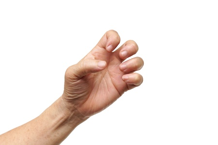finger on trigger: hand of female elderly suffering from Trigger finger, Digital flexor tenosynovitis, Stenosing tenosynovitis
