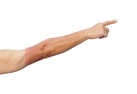 sunburn: Sunburn. Asian man with massive sunburn on his arm isolated on white with space to add text