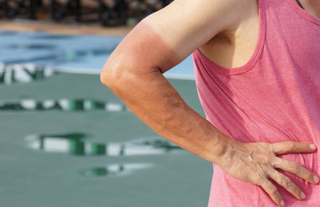 sunburn: Sunburn. Asian man with massive sunburn on his arm Stock Photo