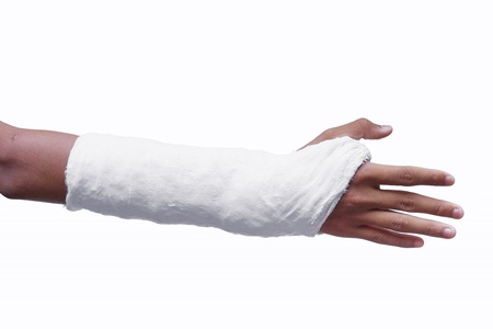 plaster cast: Broken arm with a plaster cast isolated on white Stock Photo