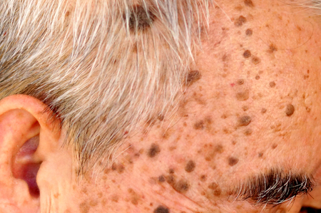 Old Asian man's head full of freckles and Seborrheic keratosis, seborrheic verruca, senile wart, benign skin tumor 免版税图像