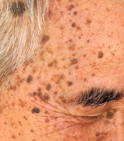 wart: Old Asian mans head full of freckles and Seborrheic keratosis, seborrheic verruca, senile wart, benign skin tumor