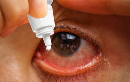 red eye: Dripping a red eye with eye drops close up