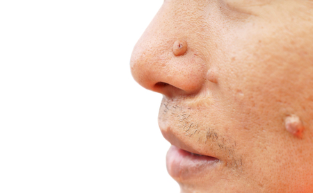birthmark: Mole on face and nose