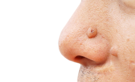 nose: Mole on nose closeup Stock Photo