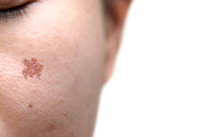 Wound scar on female face resulting from laser treatment  Beauty and skin treatment concept