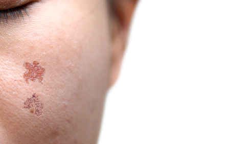 tage: Wound scar on female face resulting from laser treatment  Beauty and skin treatment concept
