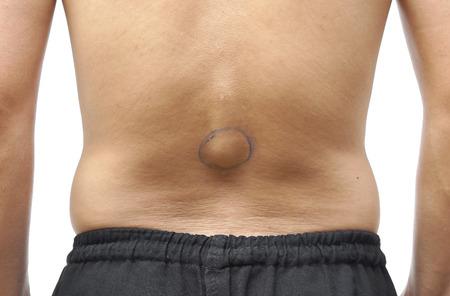 herniated: Man with abnormal backbone  Herniated dise  Congenital scoliosis