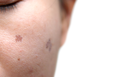 tage: Woman face with scar due to laser treatment  Beauty and skin treatment concept