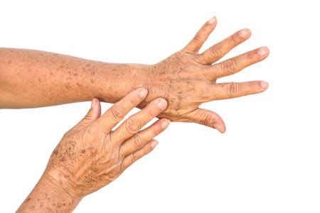 Oude Aziatische vrouwelijke handen vol sproeten en rimpels  Aging-concept