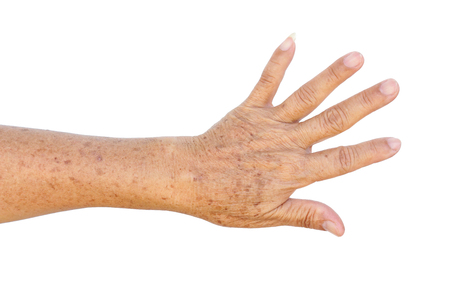 Old Asian female hands full of freckles and wrinkles  Aging concept
