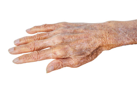 80 years: Old Asian female hands full of freckles and wrinkles at the age of more than 80 years old  Aging concept