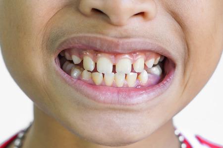 Front teeth gaps / Diastemas Stock Photo