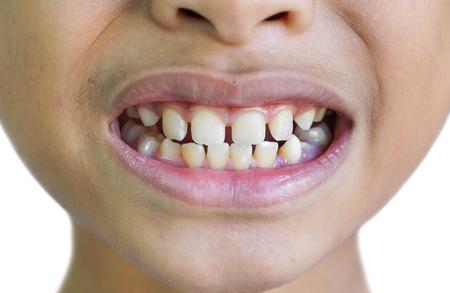 Front teeth gaps  Diastemas Reklamní fotografie