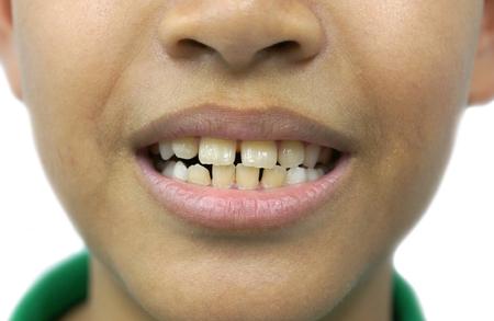 Front teeth gaps / Diastemas
