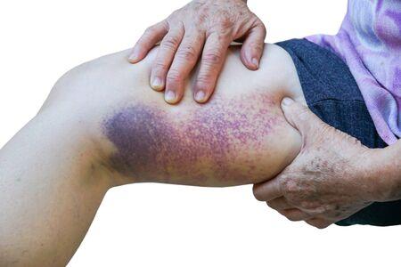 Old females leg full of bruise isolated on white