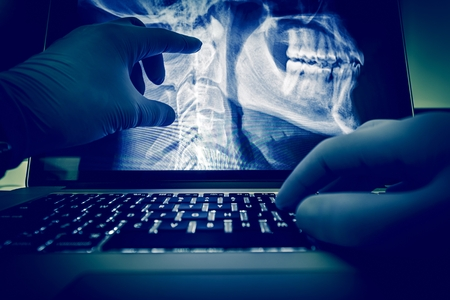 그의 척추와 X 레이 스캔 닥터 그의 노트북 컴퓨터에서 이미지를 스캔합니다. 엑스레이 디스플레이 및 검사를위한 의료 응용. 방사선학 테마.