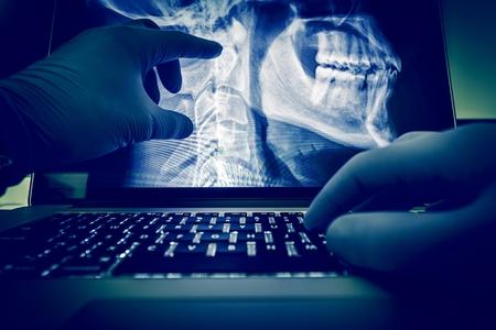 Lekarz bada kręgosłupa i głowy X Ray skanować obrazy na jego komputerze przenośnym. Zastosowanie medyczne X-Ray wyświetlaczem i egzamin. Radiologia Theme. Zdjęcie Seryjne